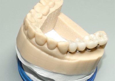 CAD-CAM Implantatkronen aus Vollzirkon / 3