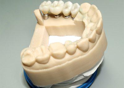 CAD-CAM Implantatkronen aus Vollzirkon / 2